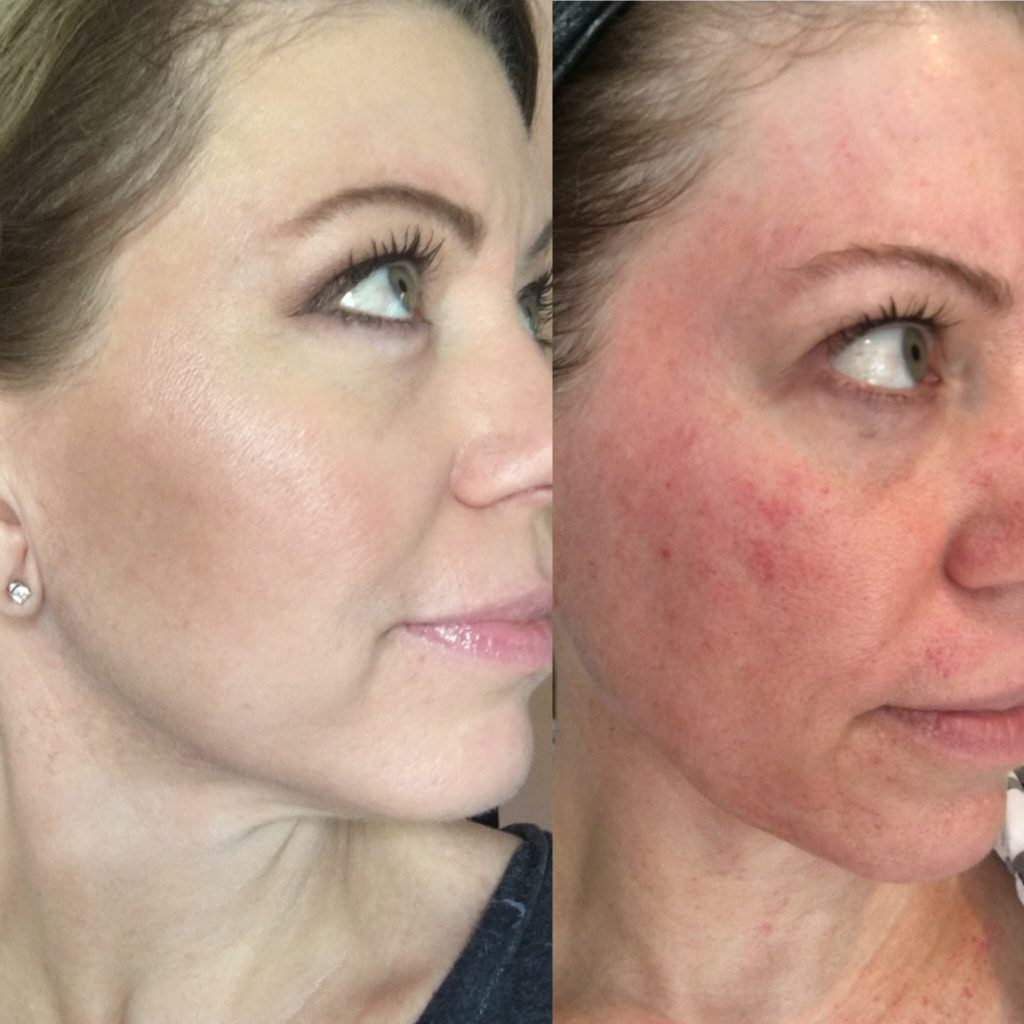 face-mask-for-wrinkles-1