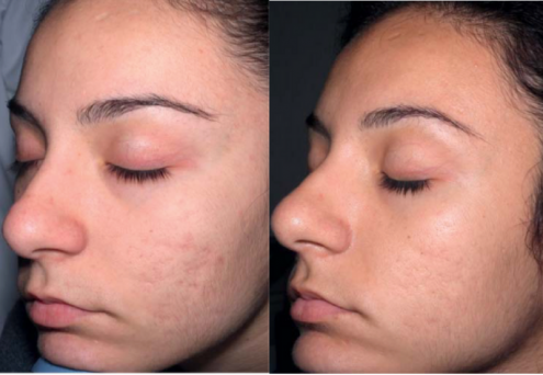micro-needling-before-and-after-2-e1489716710372