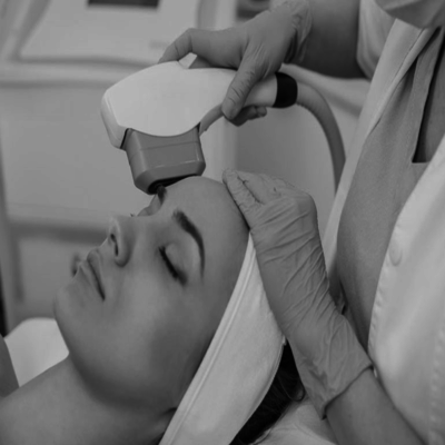 Non-Surgical-Face-Lift-Ultra-Therapy